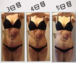 お腹の脂肪吸引5日目