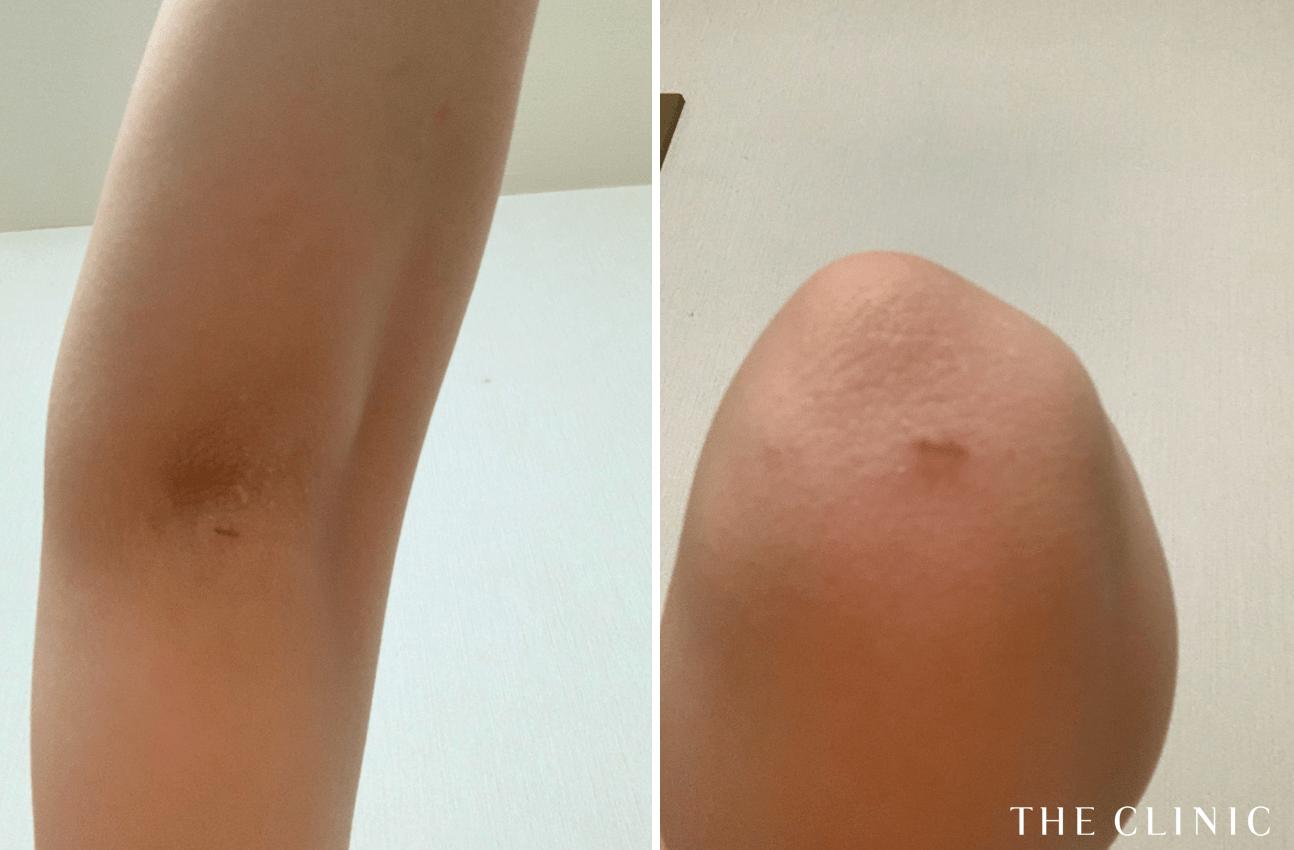 脂肪吸引の傷跡(二の腕)