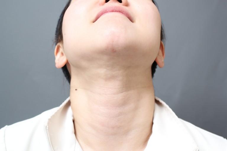 顔(頰・顎)の脂肪吸引の傷跡