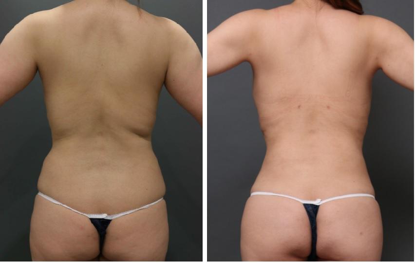 背中の脂肪吸引の傷跡