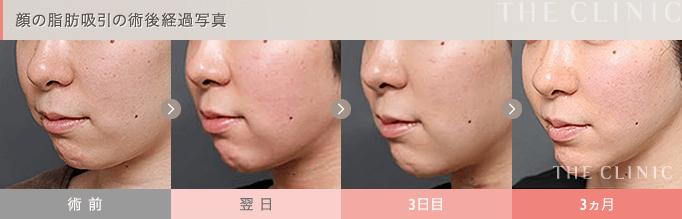 顔の脂肪吸引の術後経過
