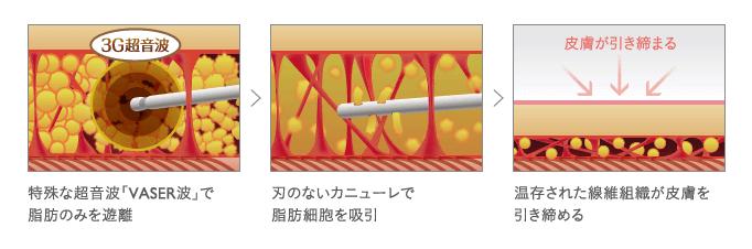ベイザー脂肪吸引の仕組み
