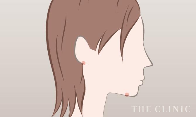 脂肪吸引の傷跡の位置(顔)